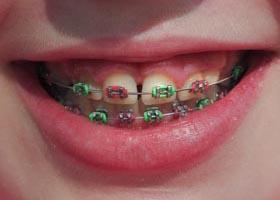 coloured-braces