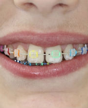 types of braces