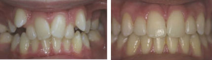 Crooked/ Crowded Teeth - Before & After