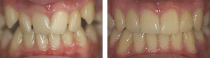 Crooked/ Crowded Teeth 3 - Before & After