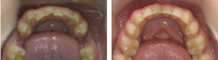 Lower Teeth3 - Before & After
