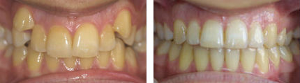 Crooked/ Crowded Teeth4 - Before & After