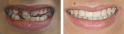 Avulsed Tooth - Before & After