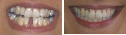 Lost Tooth2 - Before & After